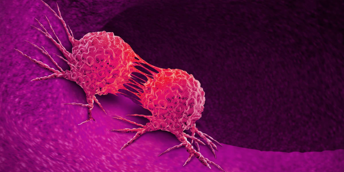 What Are the Cancer Signs Symptoms, Tests, and Treatments ...