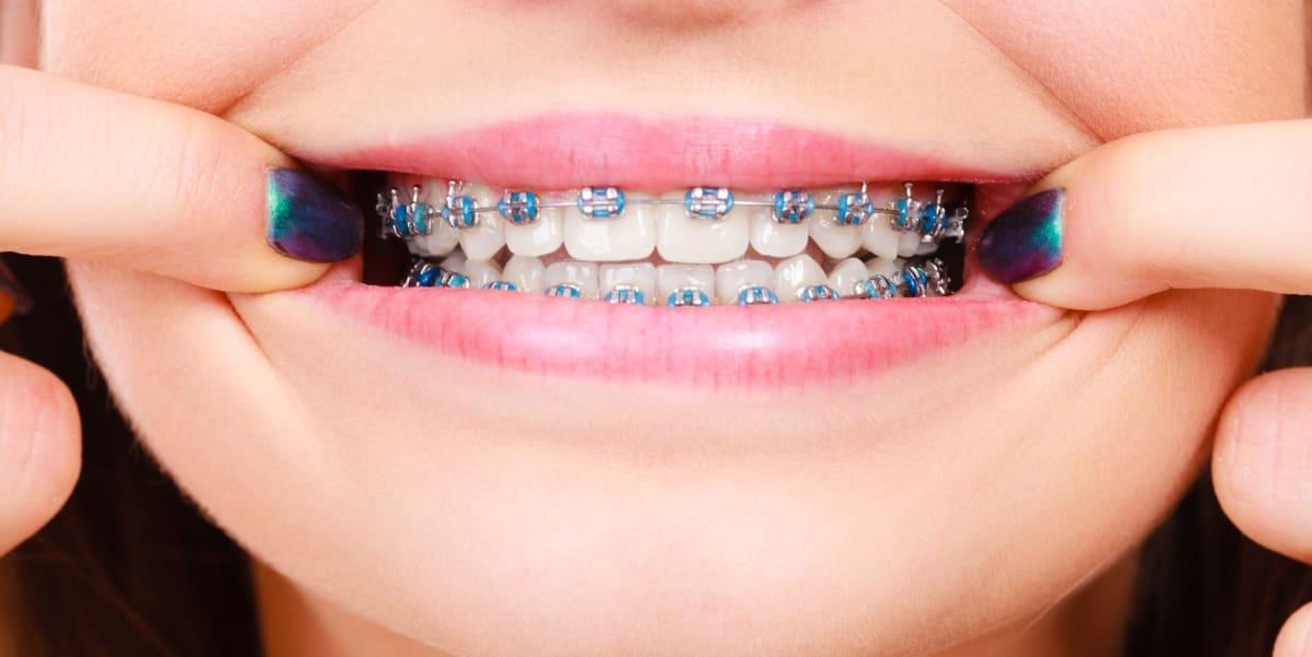 Who's Eligible for NHS Braces? | IOTN | Splash Orthodontics